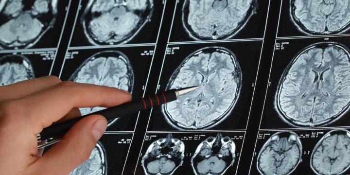 Top 4 Causes of Brain Injuries